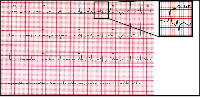 ebstein2 Como diagnosticar sobrecarga de átrio direito pela derivação V1?