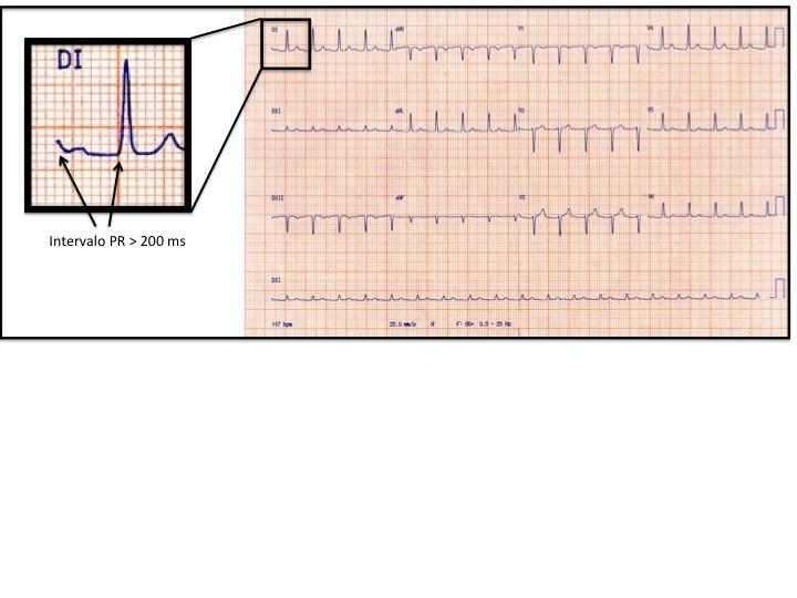 Slide11 O que pode causar aumento do intervalo PR no ECG?