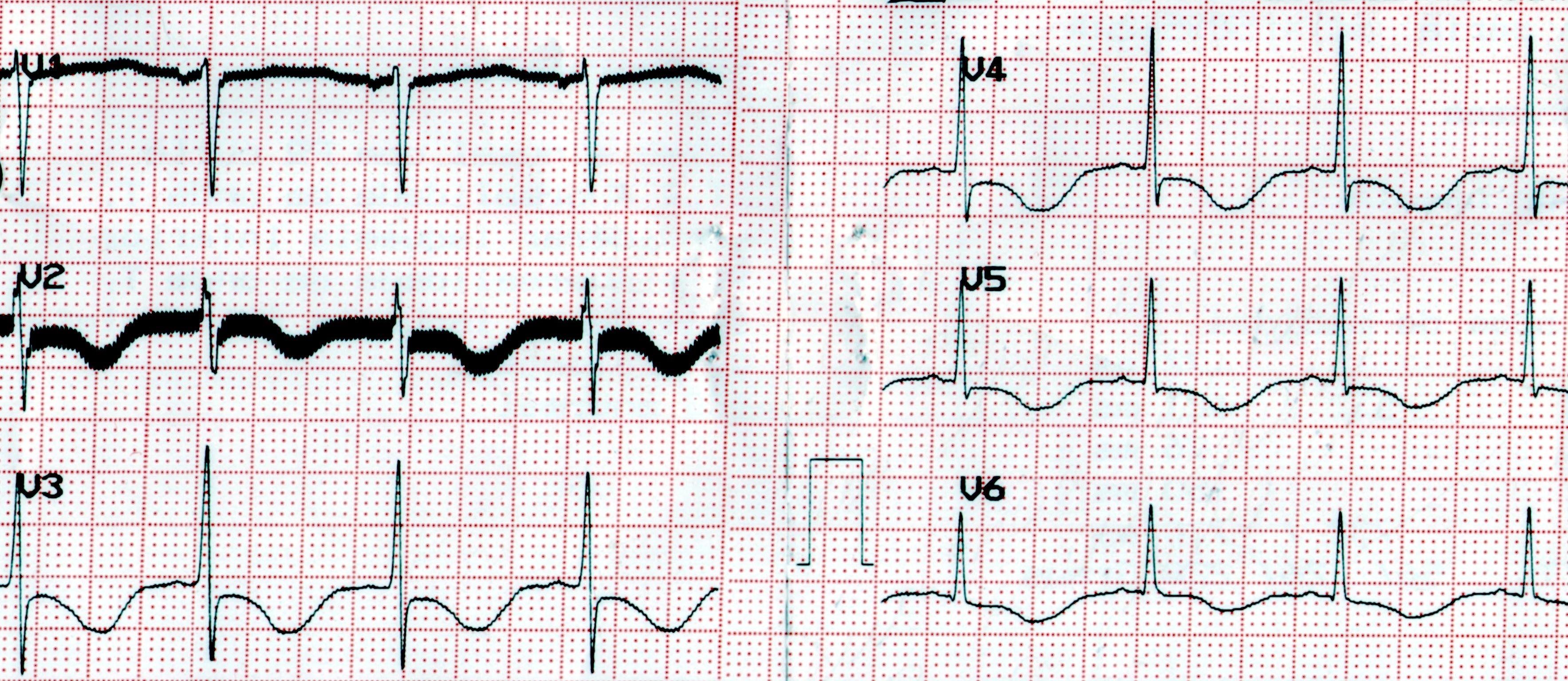Questões em cardiologia   ecg