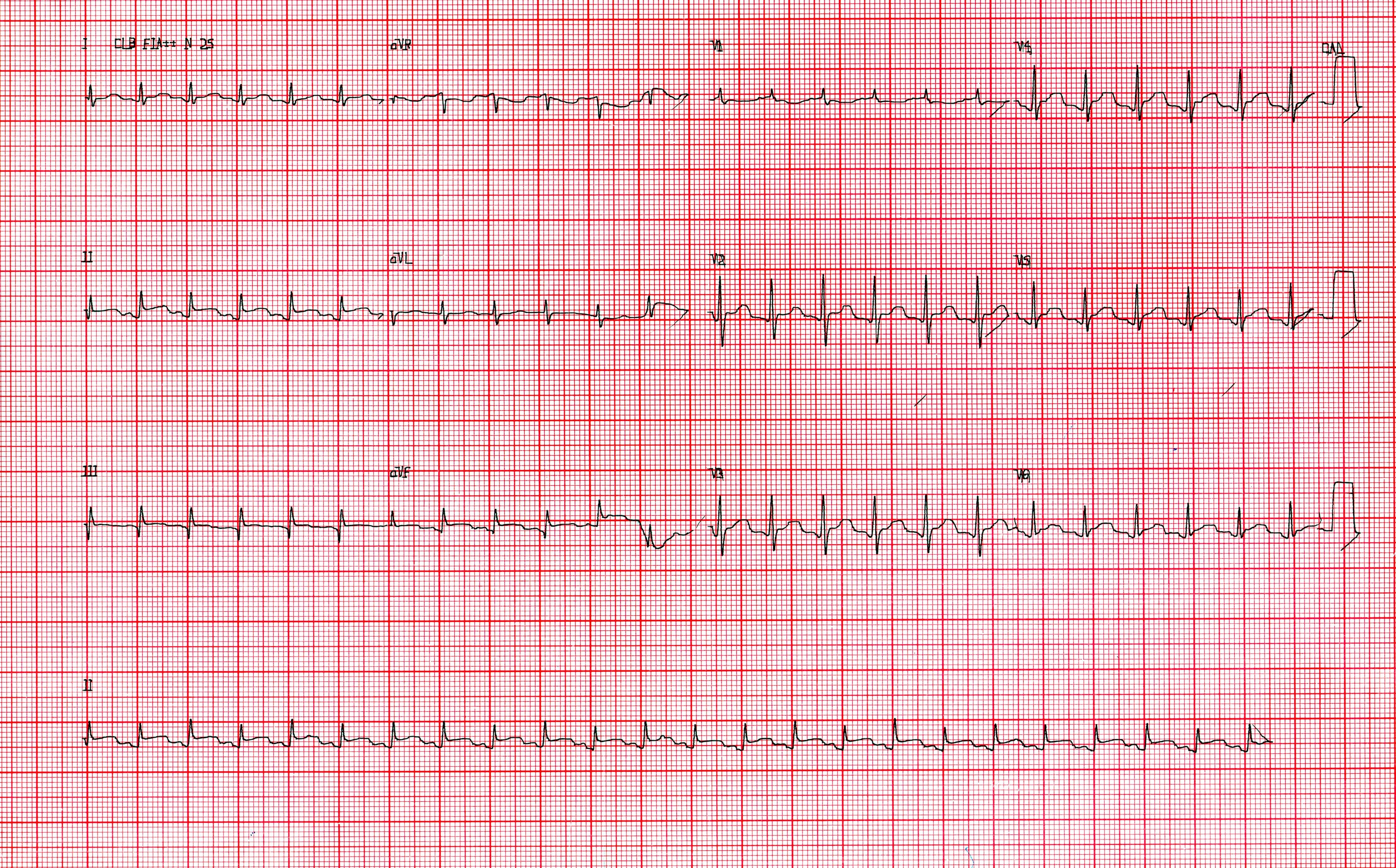 Questões em cardiologia   eletrocardiograma