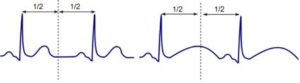 qt Dica   como suspeitar de forma rápida que o paciente tem intervalo Qt aumentado?