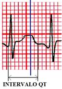 qt2 Dica   como suspeitar de forma rápida que o paciente tem intervalo Qt aumentado?