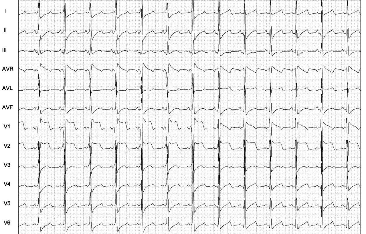 FullSizeRender Desafio de ECG   dificuldade moderada   qual o procedimento realizado pelo paciente?