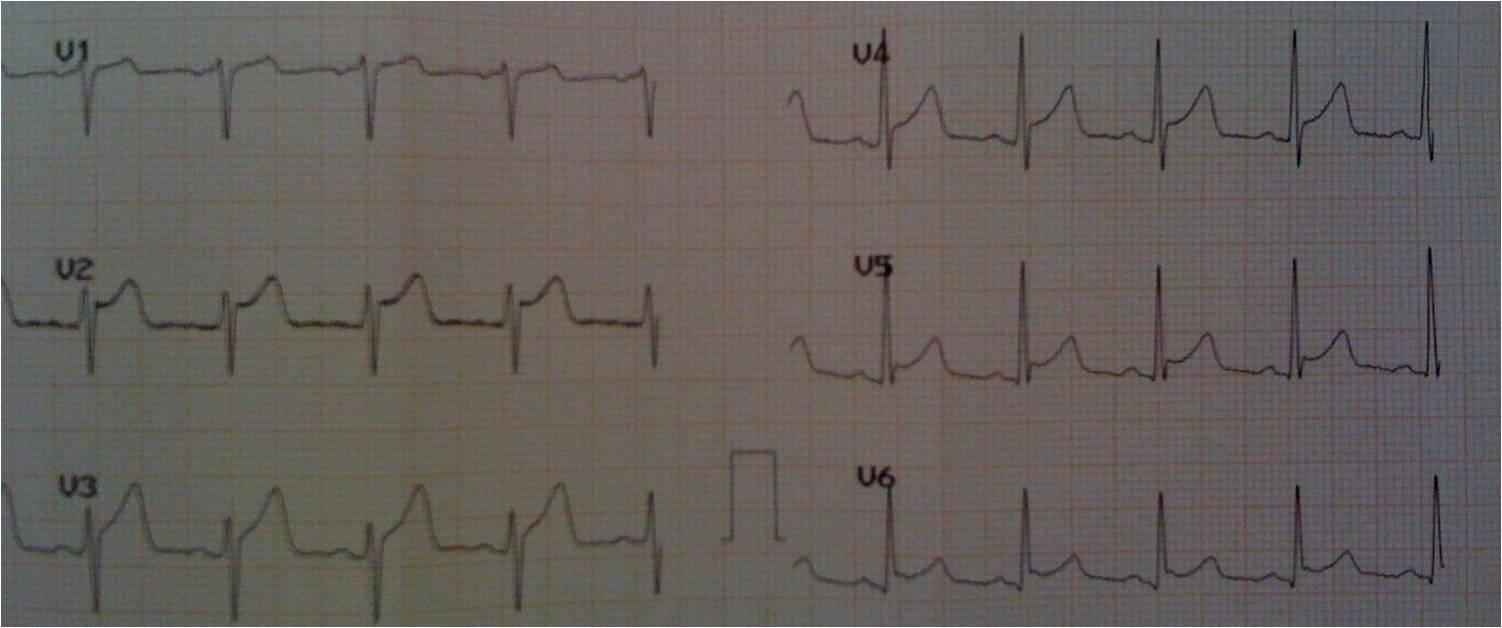 Imagem21 Desafio de ECG   qual o diagnóstico?