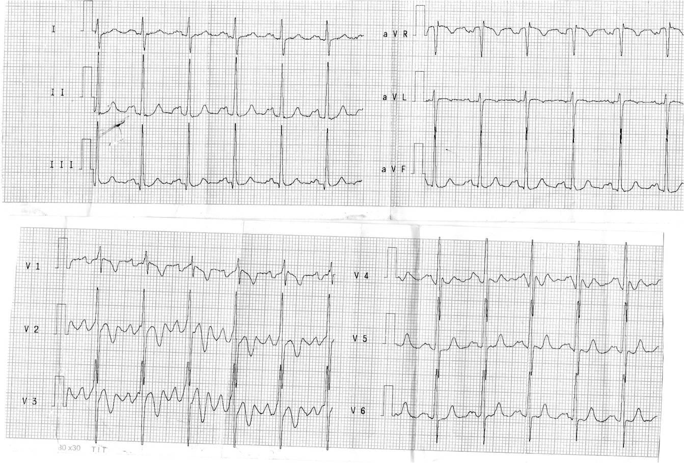 imagem20 Desafio de ECG   qual o diagnóstico?