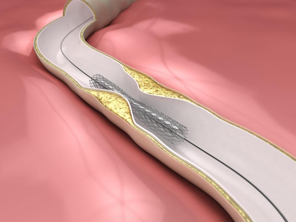 Fisiopatologia E Diagn 243 Stico Da Reestenose De Stent Por